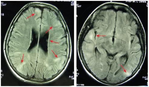 Sykora TSC MRI